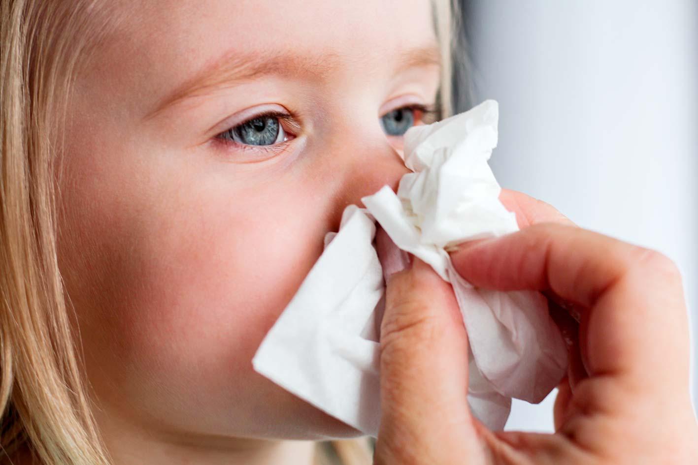 Носовые кровотечения у детей: симптомы